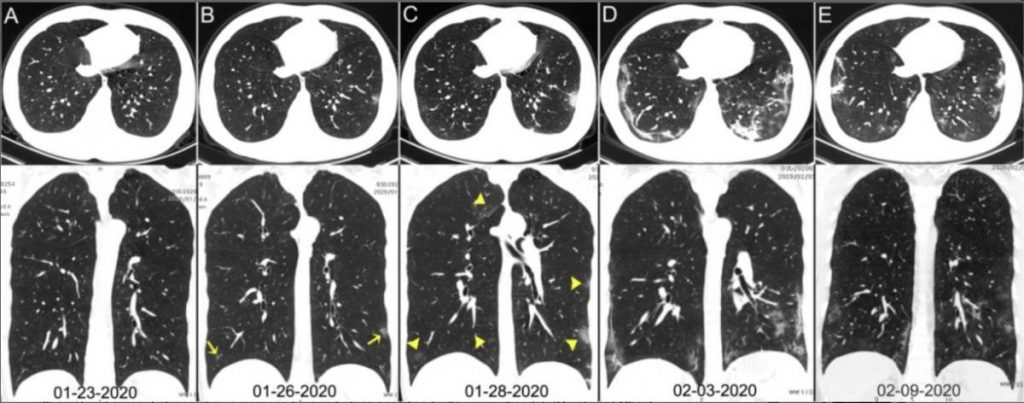 Chest CT images of a 29-year-old man with fever for 6 days.RT-PCR assay for the SARS-CoV-2 using a swab sample was performed on February 5, 2020, with a positive result. (A column) Normal chest CT with axial and coronal planes was obtained at the onset. (B column) Chest CT with axial and coronal planes shows minimal ground-glass opacities in the bilateral lower lung lobes (yellow arrows). (C column) Chest CT with axial and coronal planes shows increased ground-glass opacities (yellow arrowheads). (D column) Chest CT with axial and coronal planes shows the progression of pneumonia with mixed ground-glass opacities and linear opacities in the subpleural area. (E column) Chest CT with axial and coronal planes shows the absorption of both ground-glass opacities and organizing pneumonia. Image courtesy of Radiology. SARS‐CoV‐2